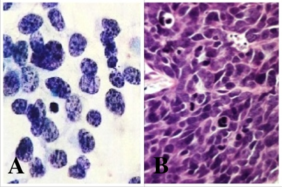 Small cell cancer and renal metastisis